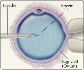 Fertilization injection intracytoplasmic review sperm vitro